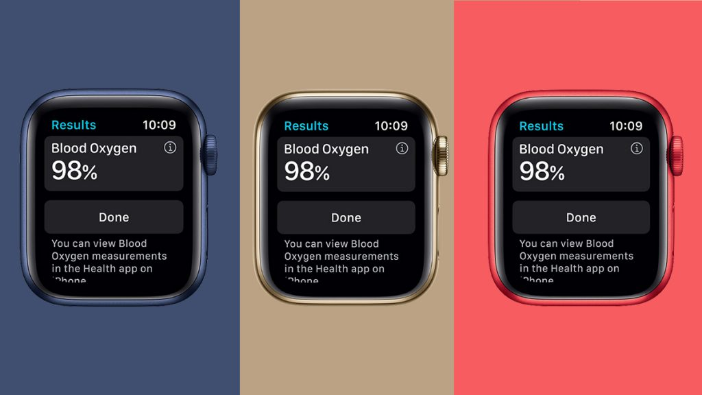 Apple watch worth buying